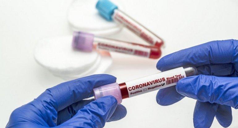 Azərbaycanda COVID-19-a yoluxma halları üzrə STATİSTİKA
