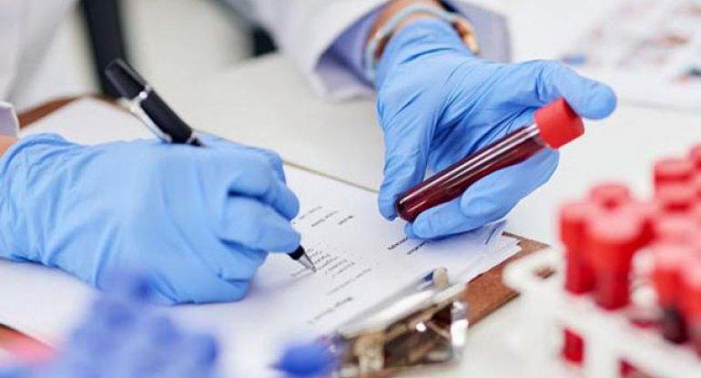 Dünyada koronavirusa yoluxanların sayı 188 milyonu ötdü